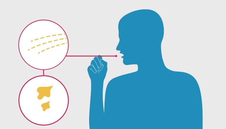 Zīmējumā attēlots vīrietis, kurš atklepo krēpas, kas ir hroniska bronhīta simptoms
